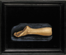 Stephen Mc.Kenna >one foot